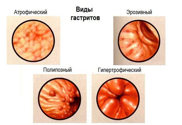 Какими атибиотиками лечить антальный эрозивный гастрит