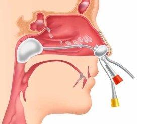 схема верхних дыхательных путей