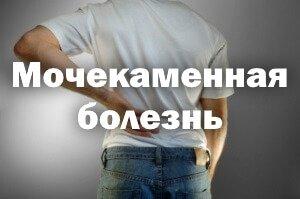 Симптомы и лечение мочекаменной болезни у мужчин