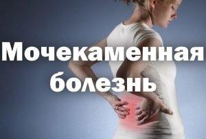 Мочекаменная болезнь у женщин