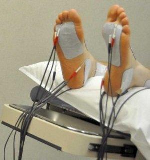 Лекарства от полинейропатии нижних конечностей