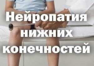 Неврологический молоточек