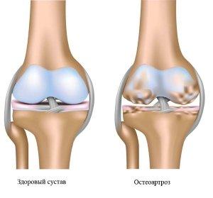 остеоартрозы