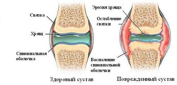 артриты