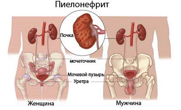 Схема у мужчин и женщин