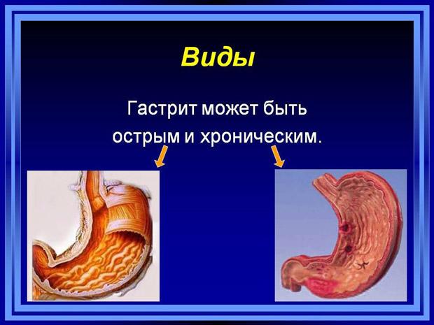 Виды воспаления