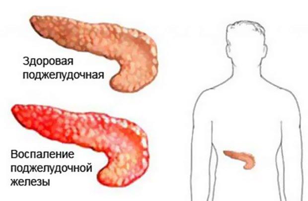 Норма и воспаление