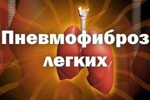 Пневмофиброз легких