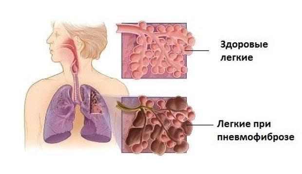 процесс в легких