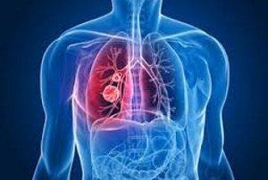 Очаг в дыхательной системе