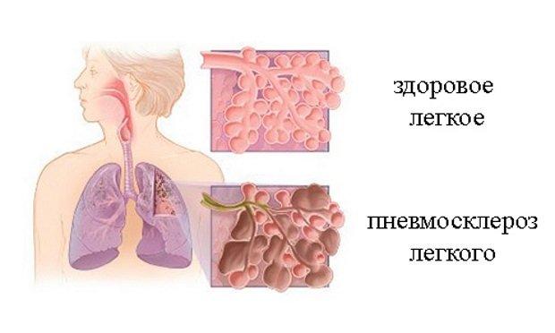 склеротическая ткань