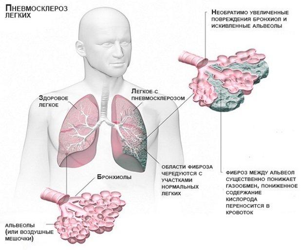 Фиброз между альвеол