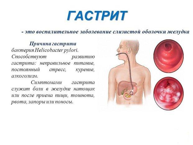болезнь и ее симптомы