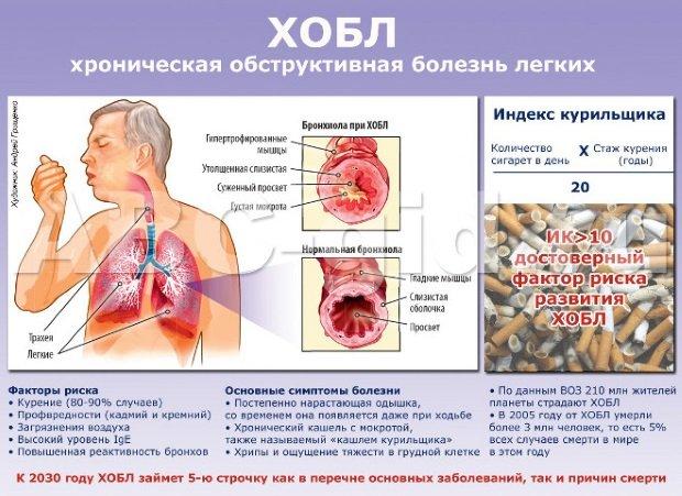 Обструктивная болезнь
