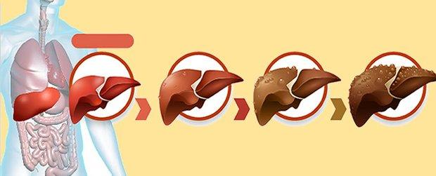 степени цирроза