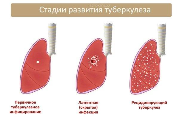 стадии развития болезни