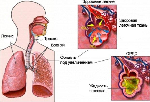 Альвеолярный мешочек