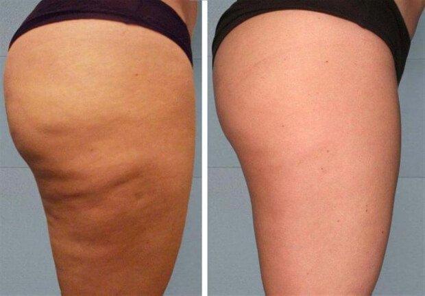 Результат до и после антицеллюлитного массажа