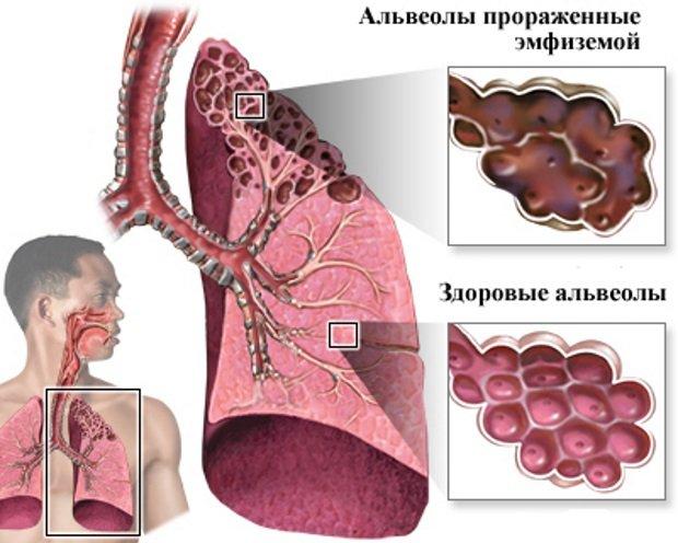 Пораженные альвеолы