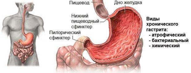 Виды хронического воспаления