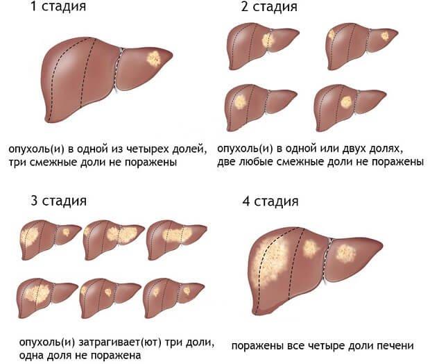 стадии поражения органа