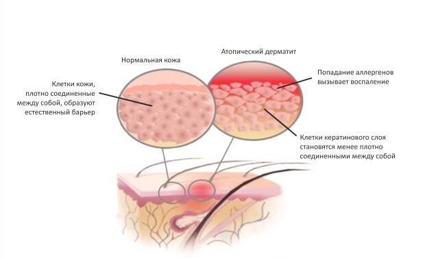 Воспаленная кожа