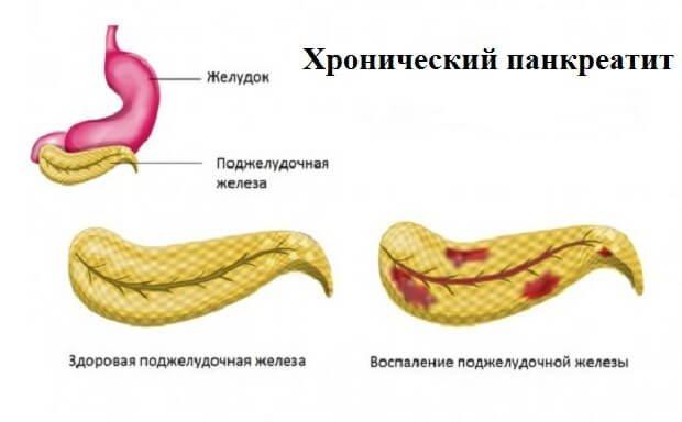 Очаги воспаления