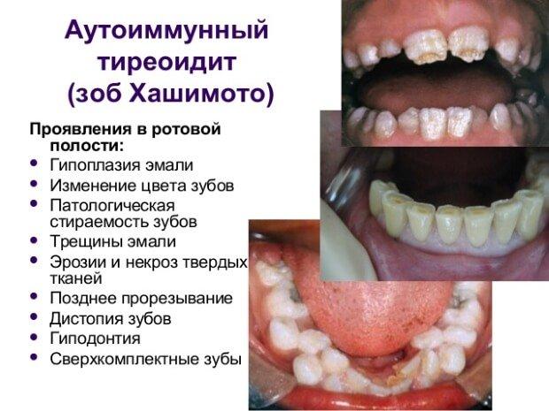 Изменения зубов