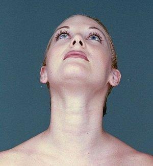 Женщина с морщинами на шее