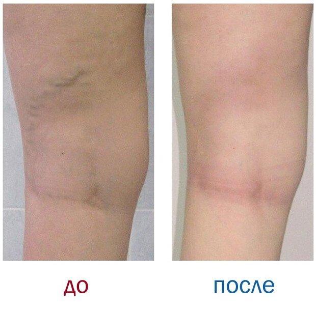 Варикоз до и после применения