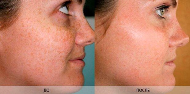 Результат после удаления пигментных пятен на лице