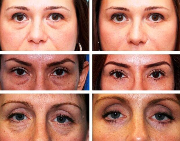 Результат после удаления морщин вокруг глаз