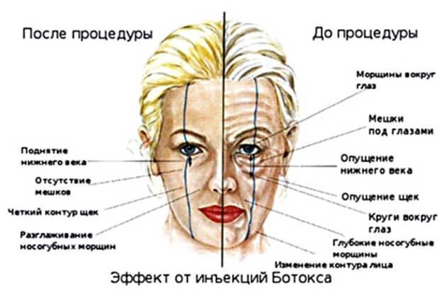 Эффект ботокса