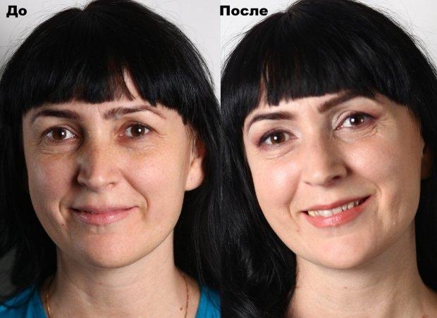 Результат применения массажа при носогубных складках