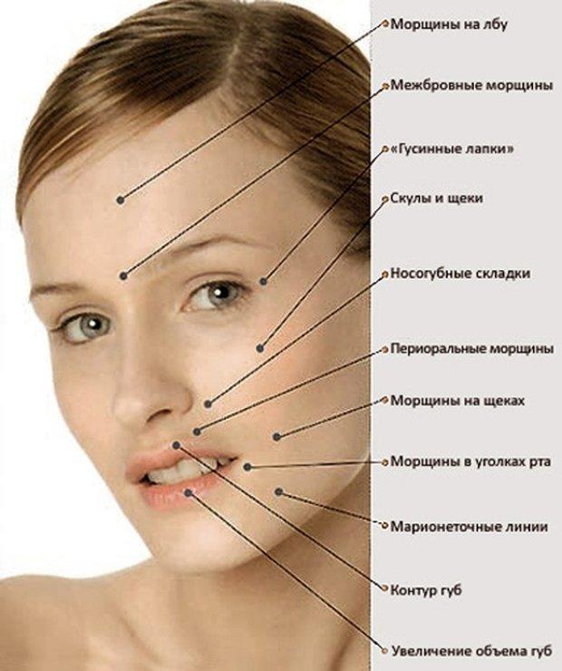 Проблемные зоны при старении кожи
