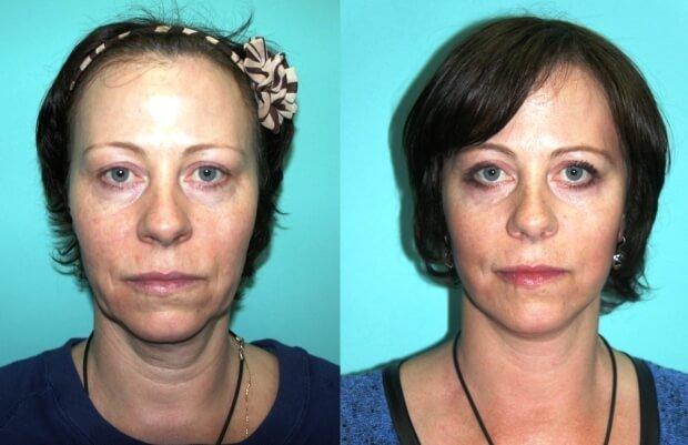 Результат после лечения отеков лица
