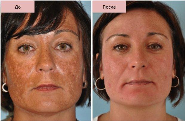 До и после лечения пигментации кожи лица