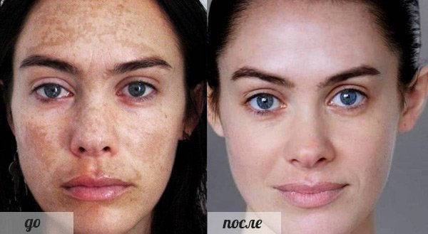 Фото до и после Элоса