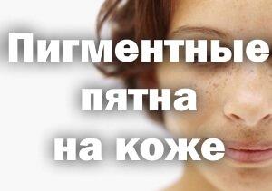 Причины пигментных пятен на коже