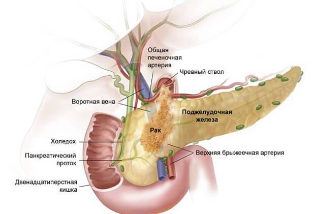 Развитие рака в органе
