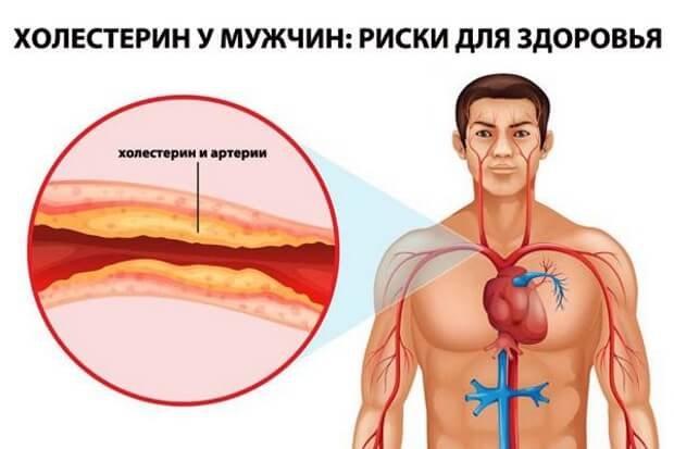 способы снижения холестерина в крови без лекарственных