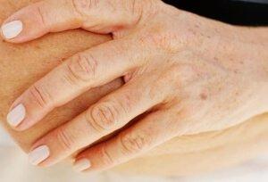 Повышенная пигментация на руках