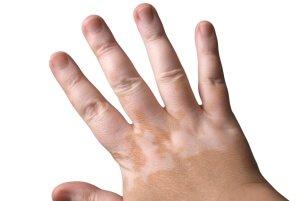 Витилиго на коже рук