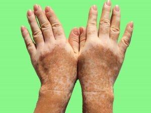 Белые пигментные пятна на руках