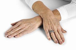 Темные пятна на руках в пожилом возрасте
