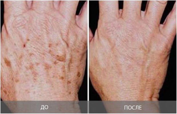 Результат после удаления пигментных пятен на руках