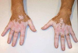 Обесцвеченная кожа