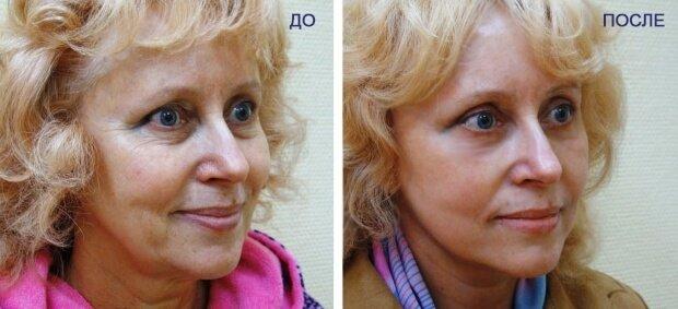 Результат после восстановления кожи