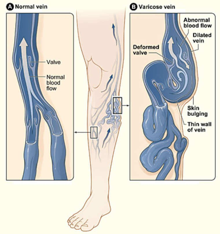 нормализация варикоза