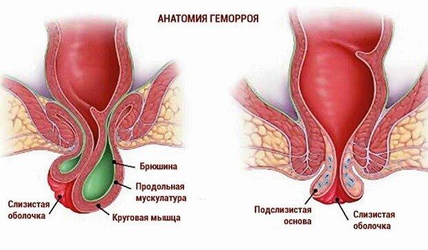 Анатомия геморроидального узла